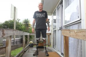 Shane Torrance had to relearn to walk after losing his legs. Photo: Jonty Dine.
